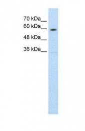 GTX46862 - NRAMP1