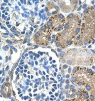GTX46870 - Glutaminase liver isoform