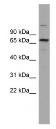 GTX46932 - BRAP / RNF52