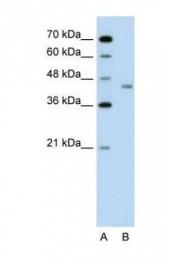 GTX47002 - LRP2-binding protein / LRP2BP