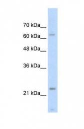 GTX47076 - Skeletal muscle Troponin I