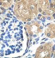 GTX47077 - Skeletal muscle Troponin I