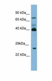 GTX47078 - Transglutaminase-3 (TGM3)