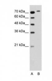GTX47103 - RHOBTB1