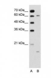 GTX47105 - CYP4A22