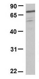 GTX47109 - Lanosterol synthase
