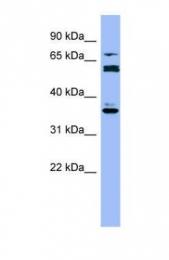 GTX47114 - CYP2B6