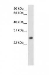 GTX47132 - GGTLC1 / GGTLA4