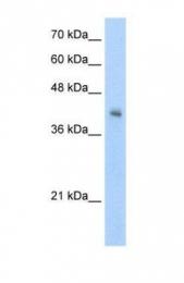GTX47141 - VSIG4
