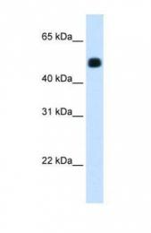 GTX47145 - mHMG-CoA synthase / HMGCS2