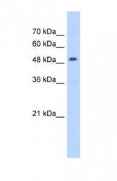 GTX47146 - mHMG-CoA synthase / HMGCS2