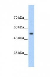 GTX47155 - SLC13A3 / NADC3