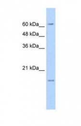 GTX47156 - SLC13A3 / NADC3