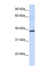 GTX47157 - Hydroxyacid oxidase 2 / HAOX2