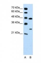 GTX47158 - Claudin-18 / CLDN18