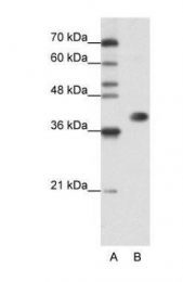 GTX47187 - hnRNP-A3 / HNRNPA3