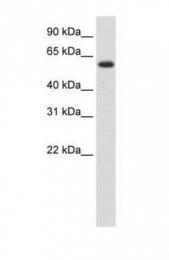 GTX47207 - DIS3-like exonuclease 2