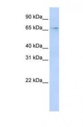 GTX47219 - APOBEC1 complementation factor