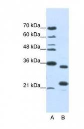 GTX47220 - ALKBH8