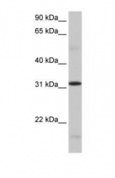 GTX47231 - SFRS13A / FUSIP1