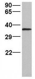 GTX47243 - hnRNP-A2/B1 / HNRNPA2B1