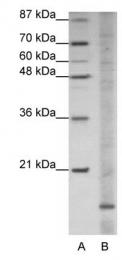 GTX47255 - Apolipoprotein O (Apo O)