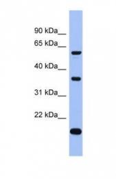 GTX47282 - LARP6