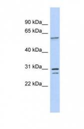 GTX47289 - TRSPAP1 / TRNAU1AP