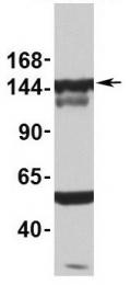 GTX47328 - SF3B1 / SAP155