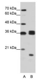 GTX47329 - hnRNP-H3 / HNRNPH3