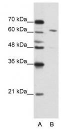 GTX47333 - CPSF6