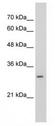 GTX47343 - SLBP / HBP