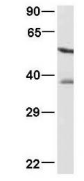 GTX47349 - PCBP1