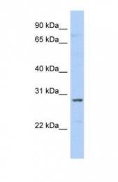 GTX47384 - snRNP A / SNRPA1