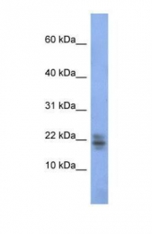 GTX47388 - RNASE1