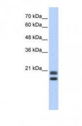 GTX47391 - Serglycin / PRG1