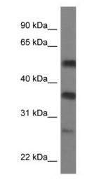 GTX47407 - SERBP1 / PAIRBP1
