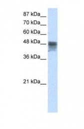 GTX47421 - RBMS3