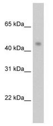 GTX47431 - PRMT8 / HRMT1L3