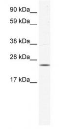 GTX47442 - KCTD6