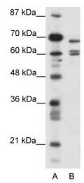 GTX47446 - KCNK5