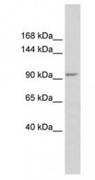 GTX47452 - KCTD19