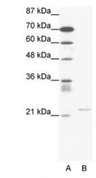 GTX47453 - TRPM3 / Melastatin-2