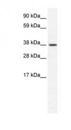 GTX47455 - TRPM3 / Melastatin-2