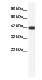 GTX47466 - Bone sialoprotein 2