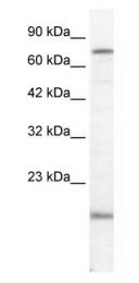 GTX47491 - PGBD3