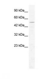 GTX47523 - CHD1L