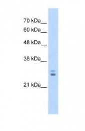 GTX47532 - KCTD11