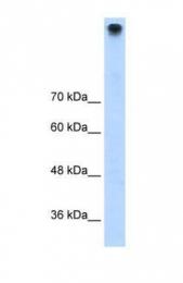 GTX47533 - TRPM3 / Melastatin-2