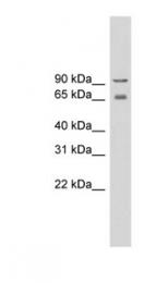 GTX47534 - CACNB2